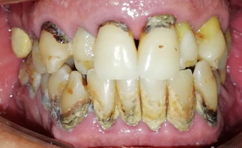 Caso clínico COR: enfermedad periodontal severa