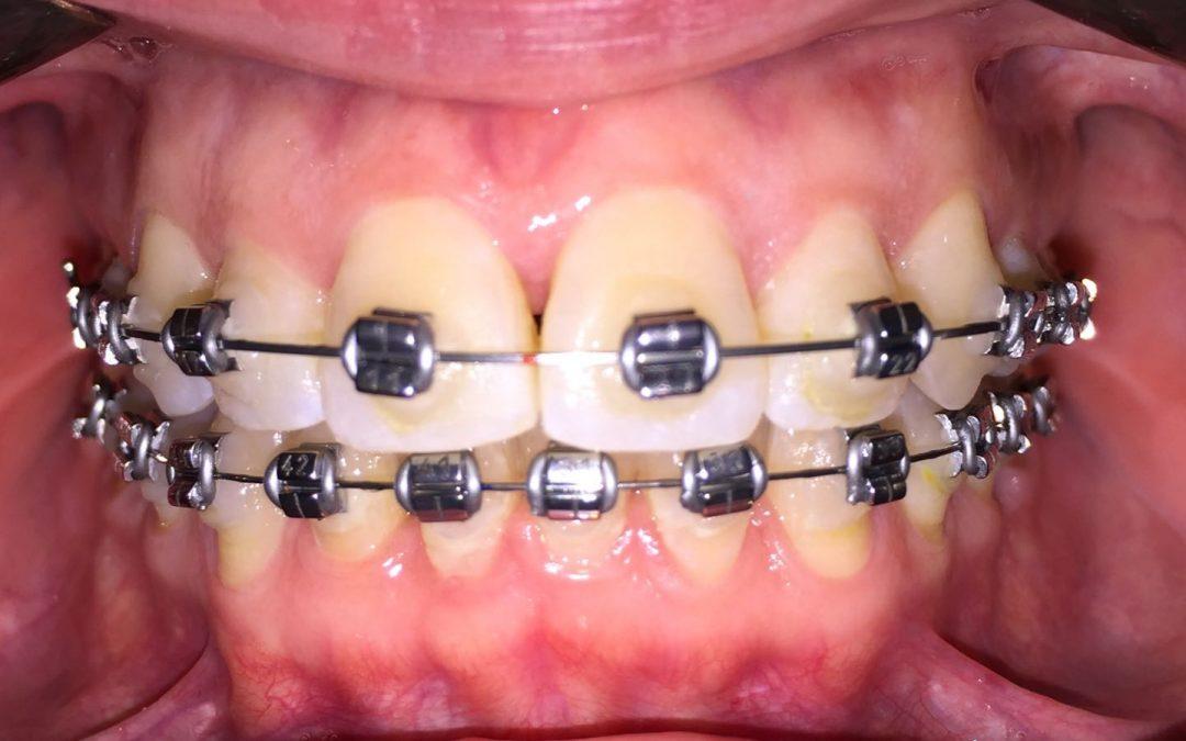 Trucos de higiene para la ortodoncia c mo tener los brackets limpios - Como alinear los dientes en casa sin brackets ...