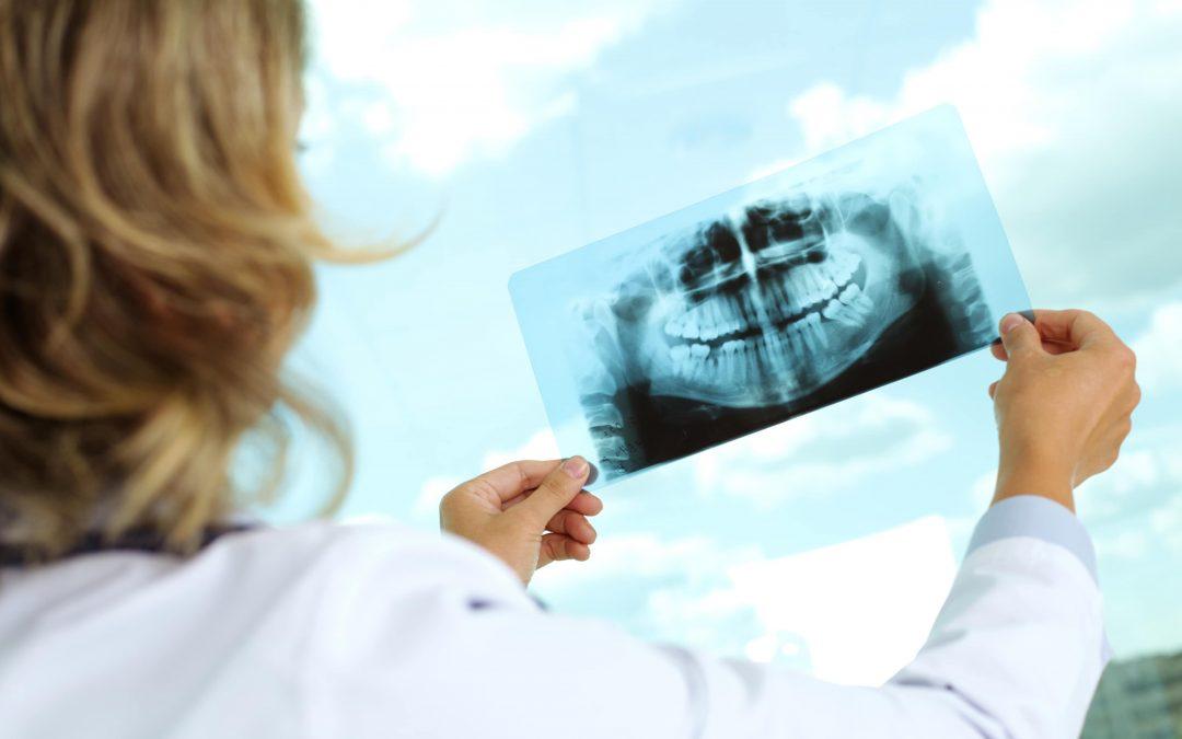 Articulación temporo-mandibular: ¿Por qué duele la mandíbula?