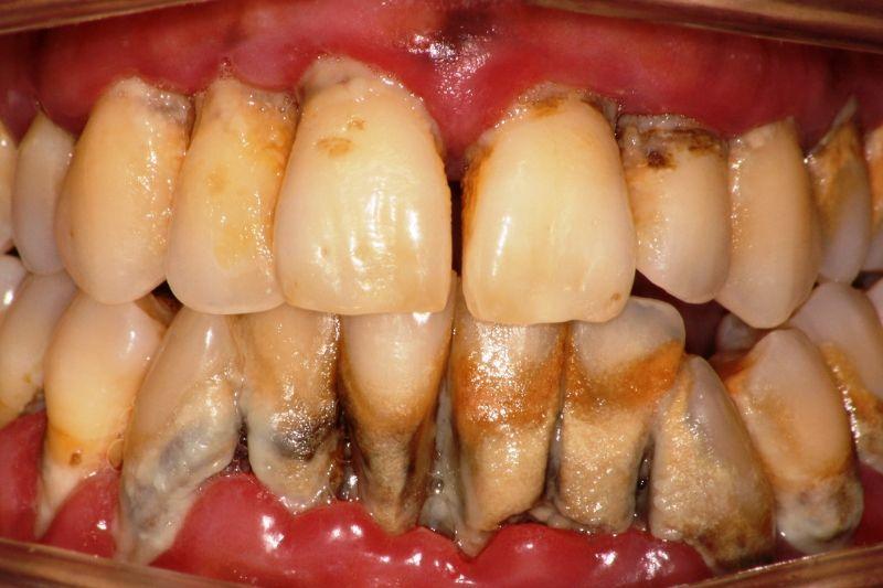 Caso clínico: el antes y después de una periodontitis extrema en Centros Odontológicos Romano