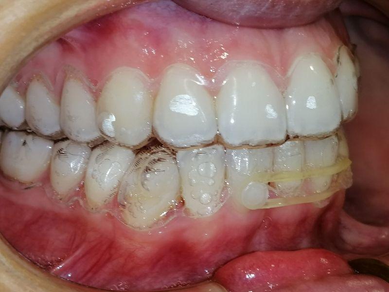 La importancia de la ortodoncia en la salud bucodental