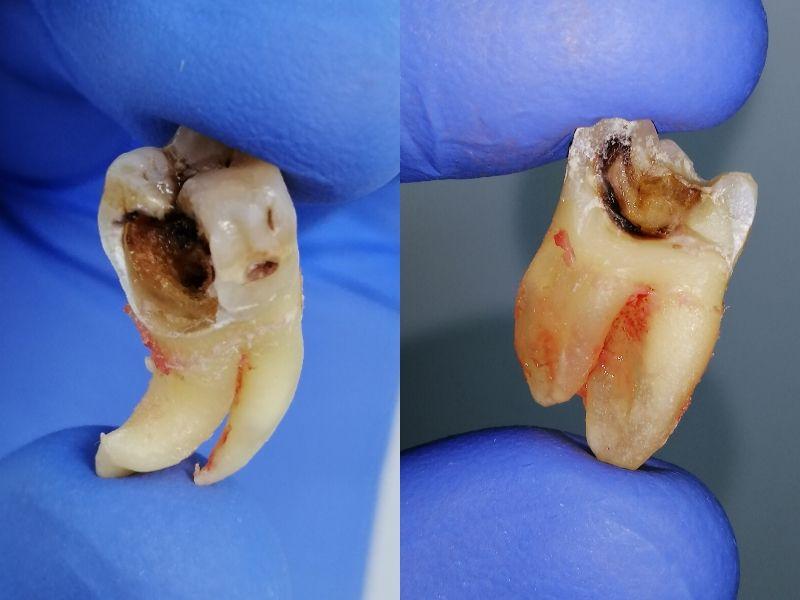 La caries dental: qué es y cómo aparece la lesión bucodental más frecuente