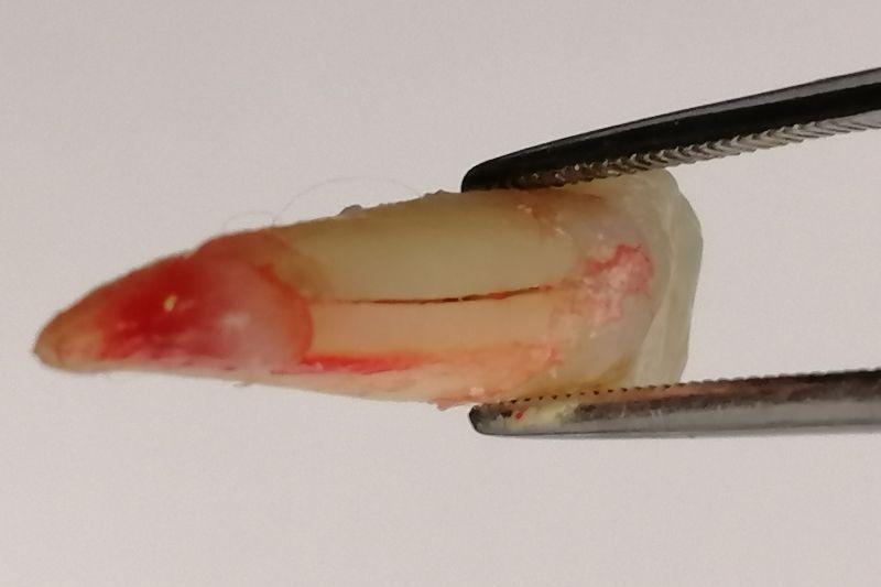 Caso clínico: dolor de dientes provocado por un diente fisurado