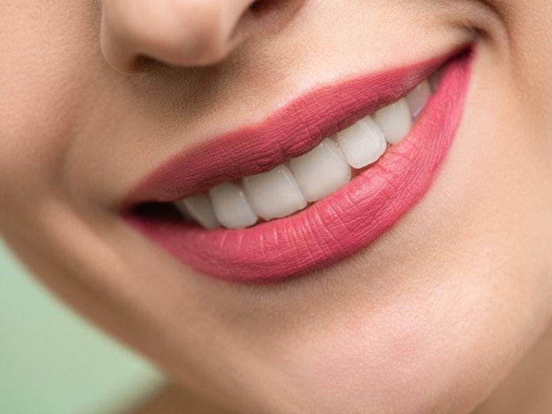Hipoplasia dental, la patología que afecta al esmalte