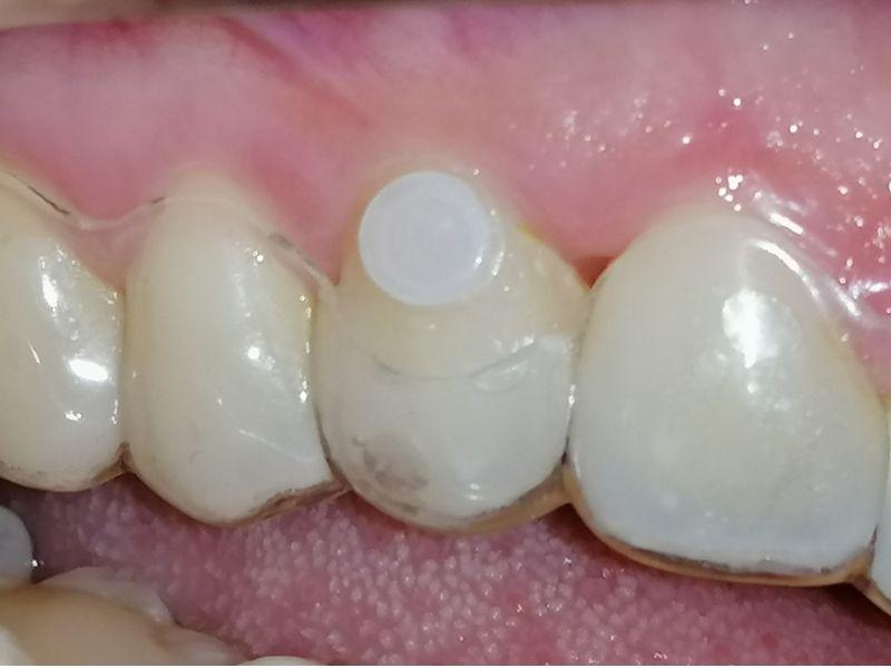 Caso clínico: tratamiento de ortodoncia invisible en Alicante