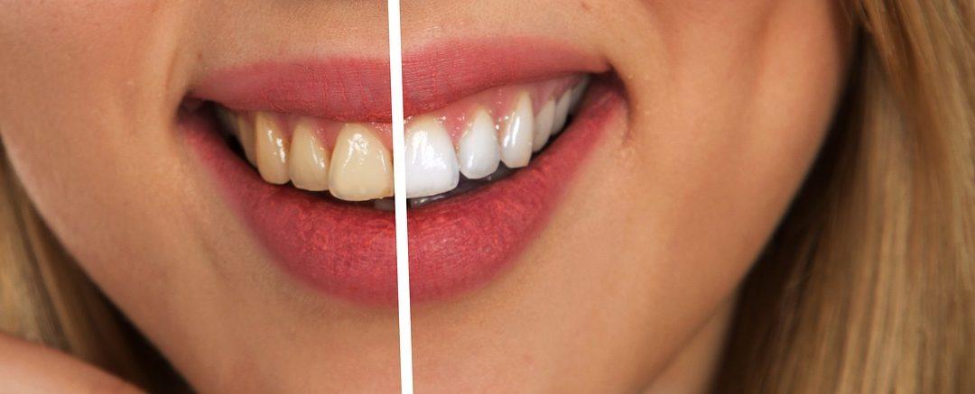 Blanqueamiento dental: ventajas, contras y características de este tratamiento